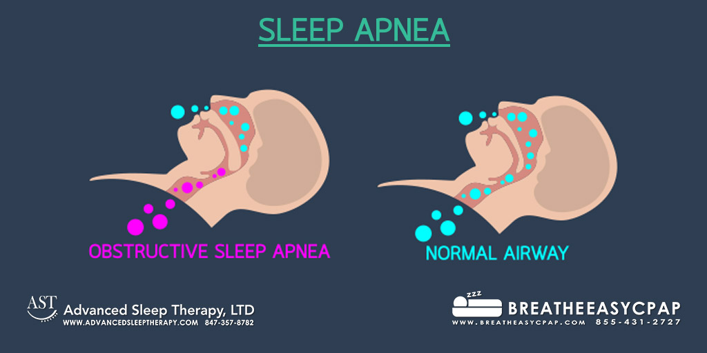 Sleep Apnea Definition - 3 Kinds of Sleep Apnea