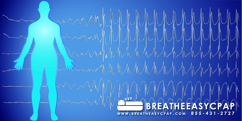 At Home Sleep Studies and In Lab Polysomnography
