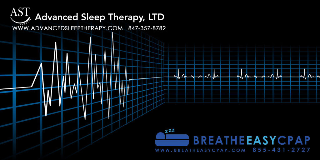 What Your Apnea Hypopnea Index Means for Your Sleep Apnea Treatment